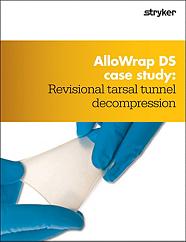 AlloWrap Tarsal Tunnel