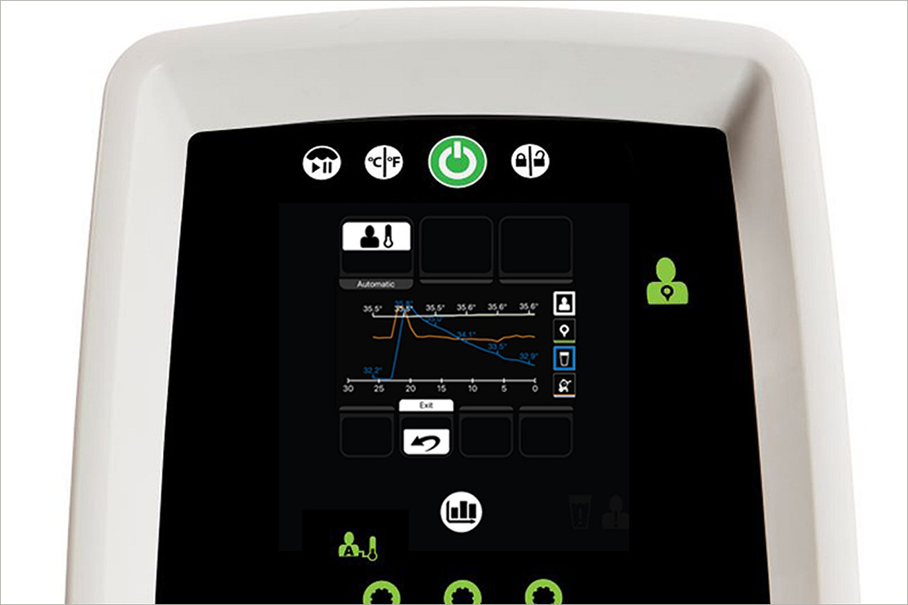 Altrix screen with patient graph