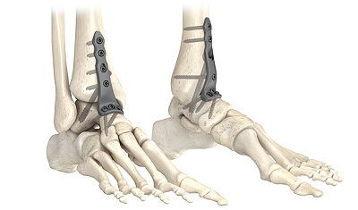 AxSOS Ankle Fusion