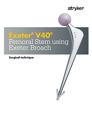 Exeter V40 Surgical technique - EXETER-SP-6