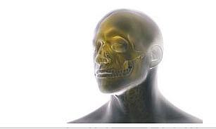 Craniomaxillofacial