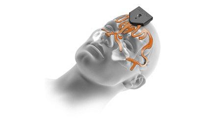 CranialMap 3.0