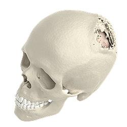 PEEK Single Stage Implant