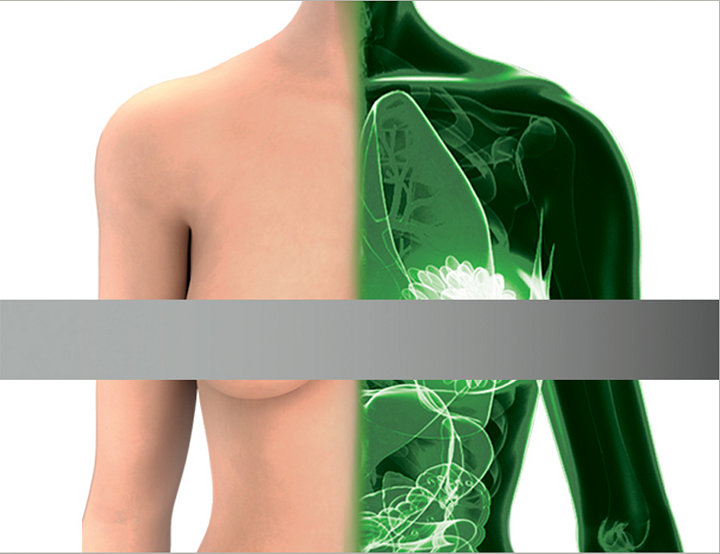 1588 AIM + SPY Fluorescence Technology - Plastic Surgery
