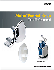 Mako Partial Knee Patellofemoral Surgical reference guide - MAKPKA-PG-4