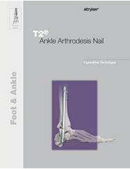 T2 Ankle Operative Technique