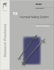T2 Humeral Nailing System operative technique