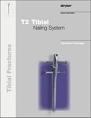 T2 Tibia operative technique