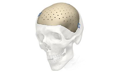 Cranial iD