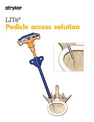 LITe Pedicle Access Brochure
