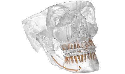 VSP® Orthognathics