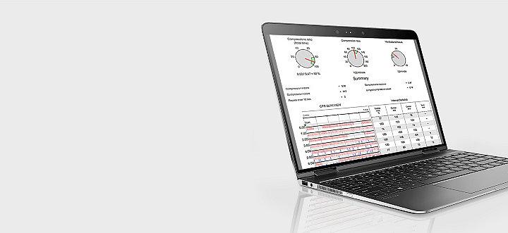 El software de revisión de datos CODE-STAT en la pantalla de un ordenador portátil