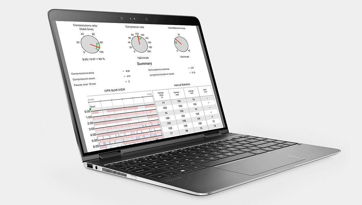 Auf dem Bildschirm eines Laptop-Computers gezeigte CODE-STAT-Datenüberprüfungssoftware