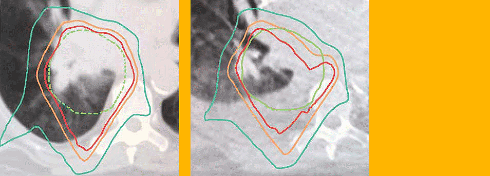 Left: Image of fluid accumulation in lungs (original)  Right: Image of fluid accumulation in lungs (3 weeks later)