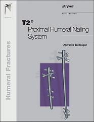 T2 Proximal Humeral operative technique