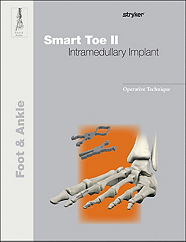Smart Toe II operative technique