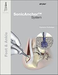 SonicAnchor operative technique