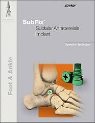 SubFix operative technique